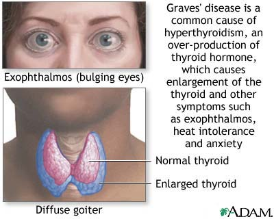 how do you get thyroid disease - for life and style